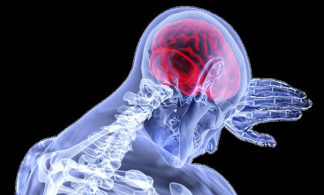 anatomía física de una persona con dolor de cabeza